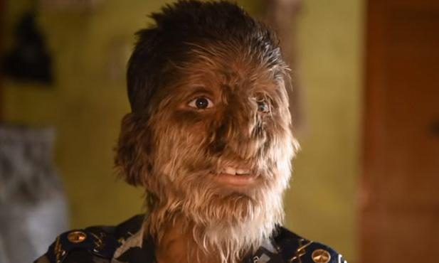 Lalit (13) suffers from rare syndrome, resembles werewolf