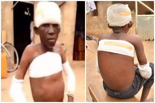 Absurd: Maxwell Ayinbisa (11) set ablaze for peeping a woman