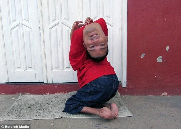Man born upside down become a model [Video]