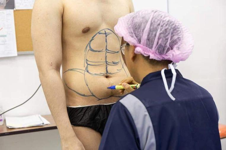 Photo of Don't feel like exercising? Thai clinic introduces instant six-pack