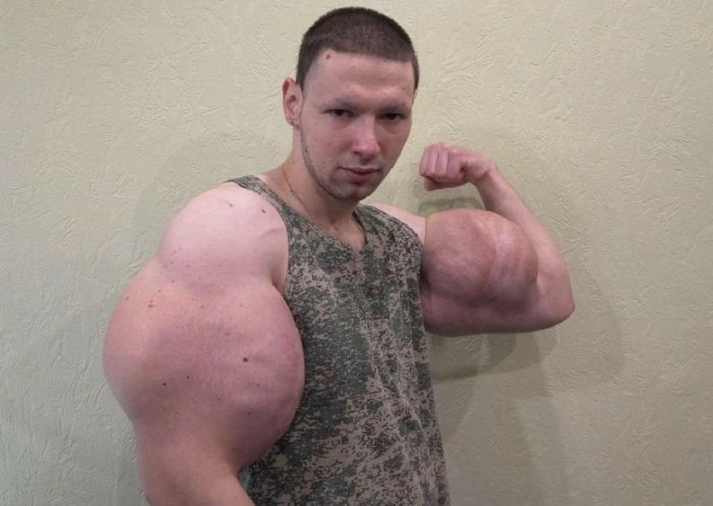 Popeye bodybuilder wants to get rid of oil-filled mega biceps