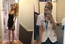 Rebecca shows how she overcame anorexia and receives praises