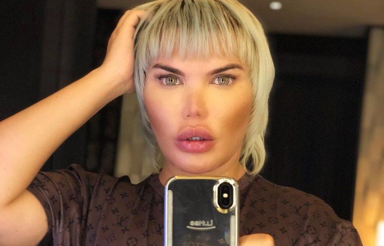Facelift addict Rodrigo: 'My nose suddenly drops'
