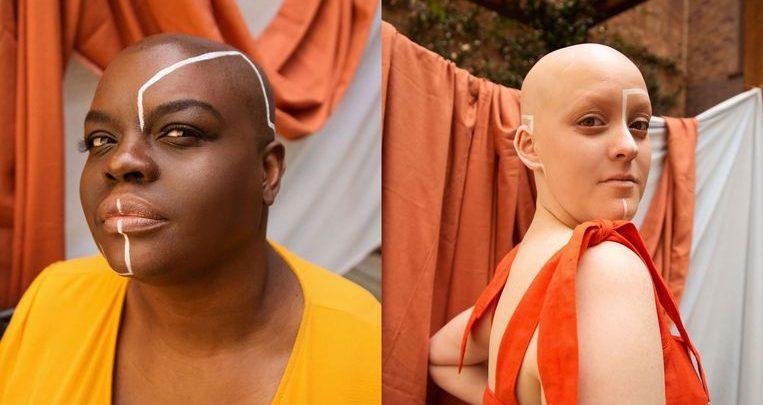 Photo of Women pose to break the taboo around the alopecia hair condition