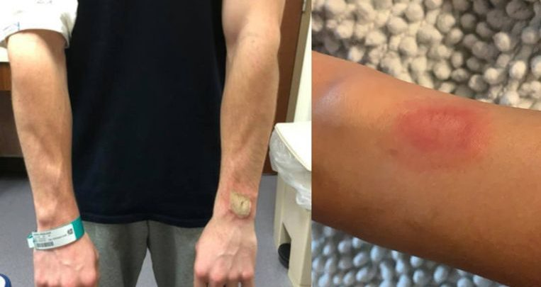 Photo of Big burns due to Fitbit: is wearing a sports watch dangerous?